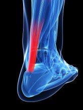 18451363 - 3d rendered illustration of the achilles tendon